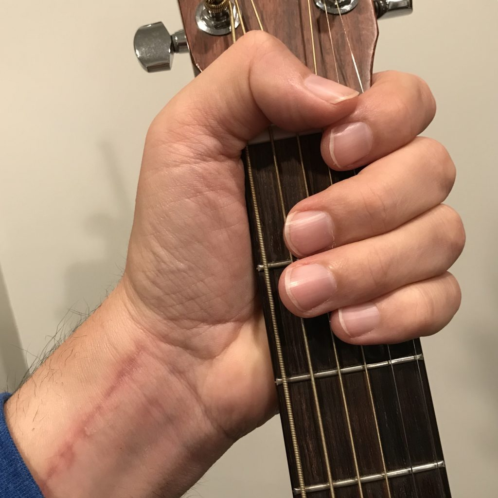 Guitar and colles fracture